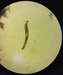 parasite fluke